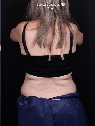 CoolSculpting & CoolMini Before & After Photo