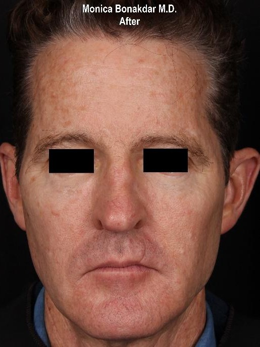 Full Facial Rejuvenation - Male AmpliPhi Before & After Photo