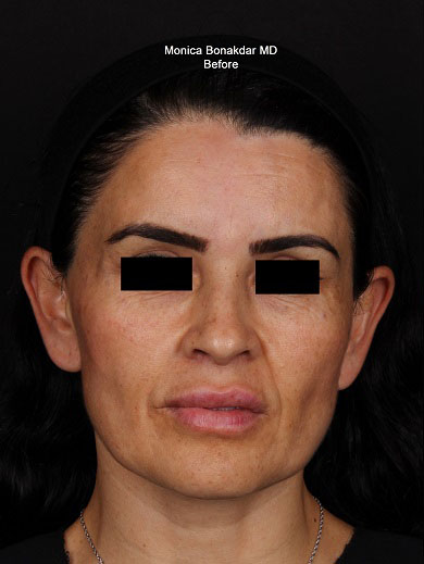 Ampliphi Treatment - Women Before & After Photo