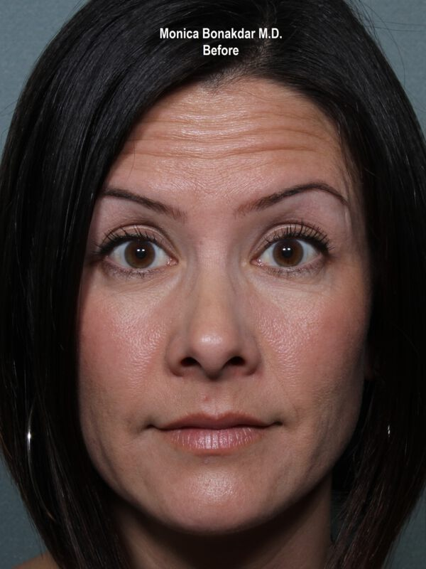 Botox Cosmetic Before & After Photo