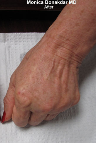Hand Rejuvenation Before & After Photo