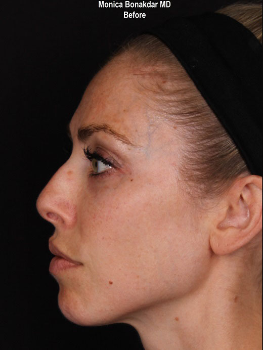Non-Surgical Rhinoplasty Before & After Photo